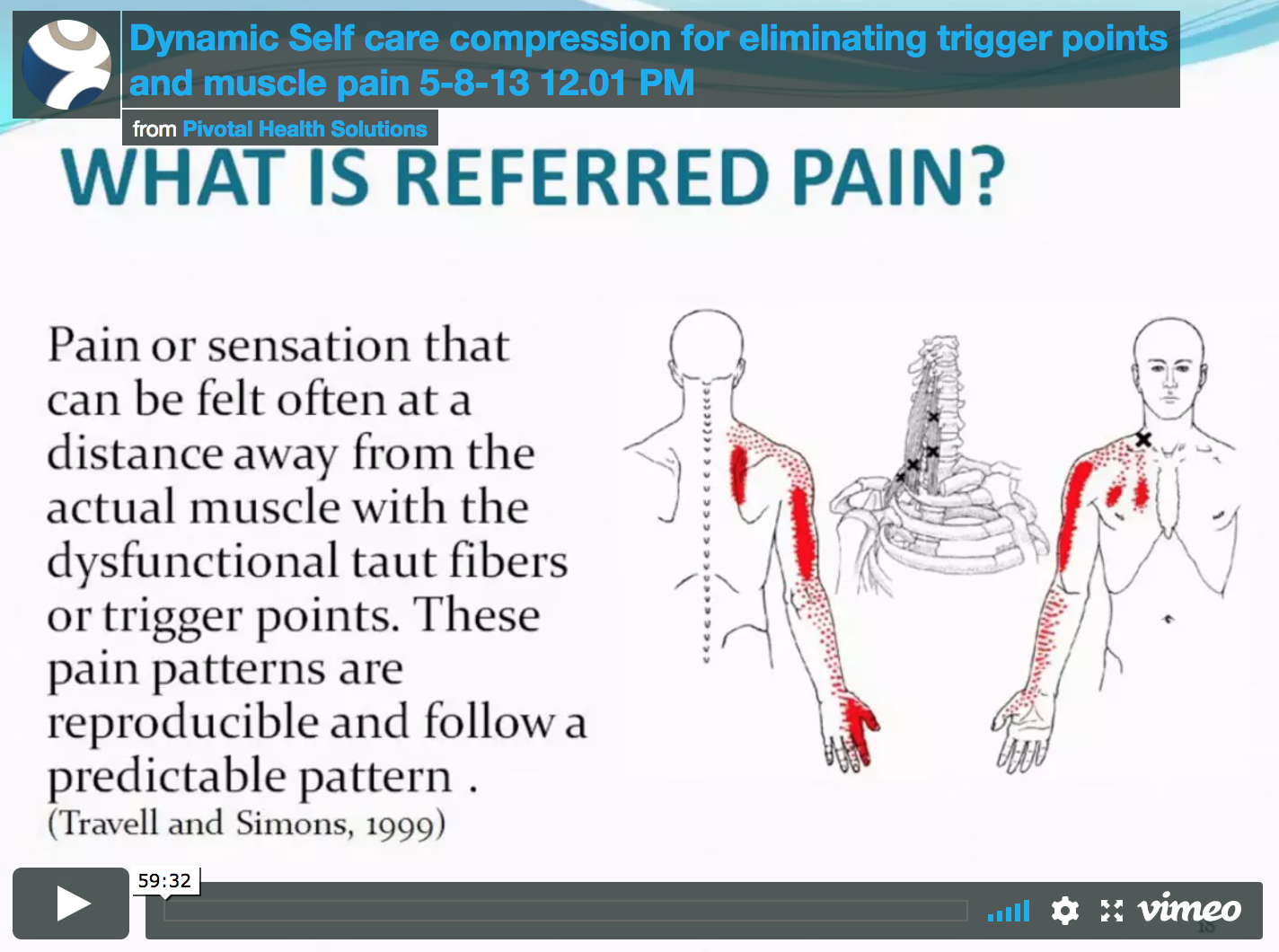 Trigger Points and Muscle Pain