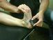 Fluid Motion Treatment for Plantar Fasciitis